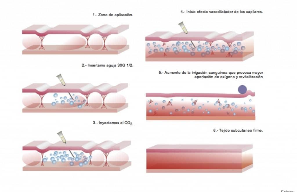 CICLO-CARBOXITERAPIA1_0-1